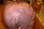 foto psoriasis hoofdhuid
